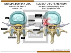 Illustration of a lumbar disc herniation