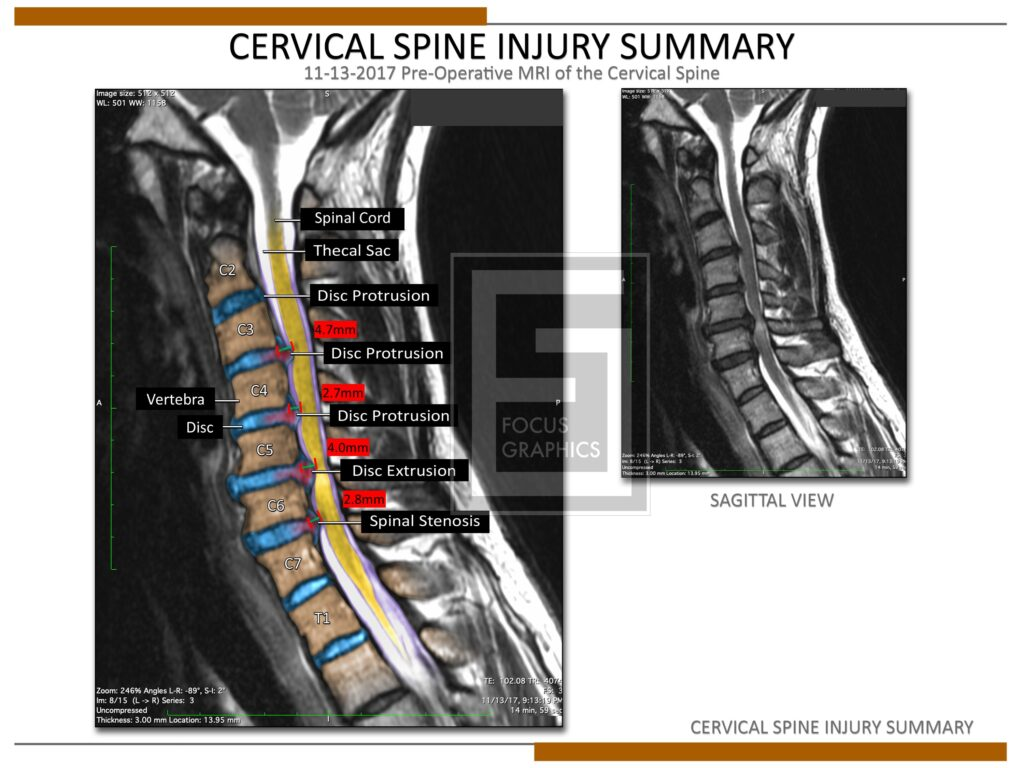 Colorization of a cervical spine injury