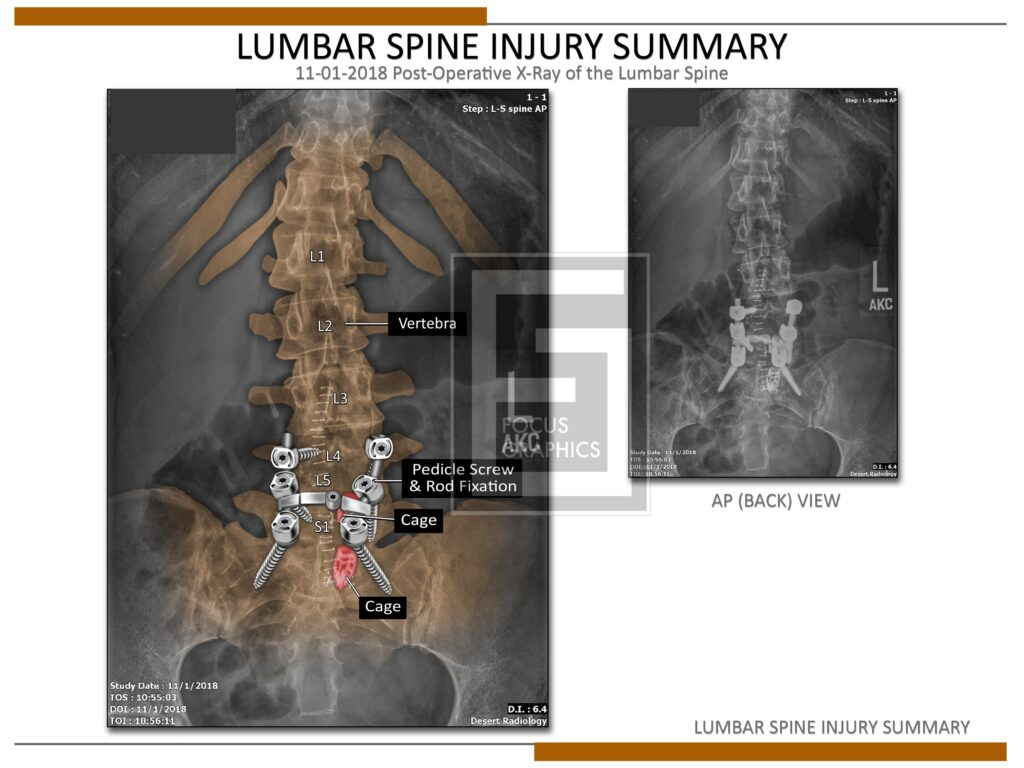 Colorization of a lumbar spine injury