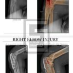 pre and post Xray of right elbow with colorization