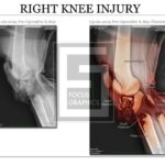 pre and post Xray of right knee with colorization