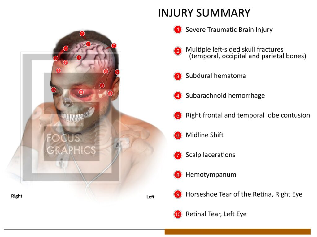 Injury summary board of a person who was hit in the head with a baseball bat