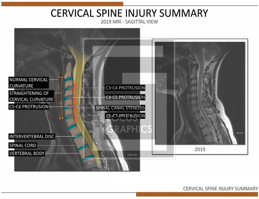cervical spine injury summary